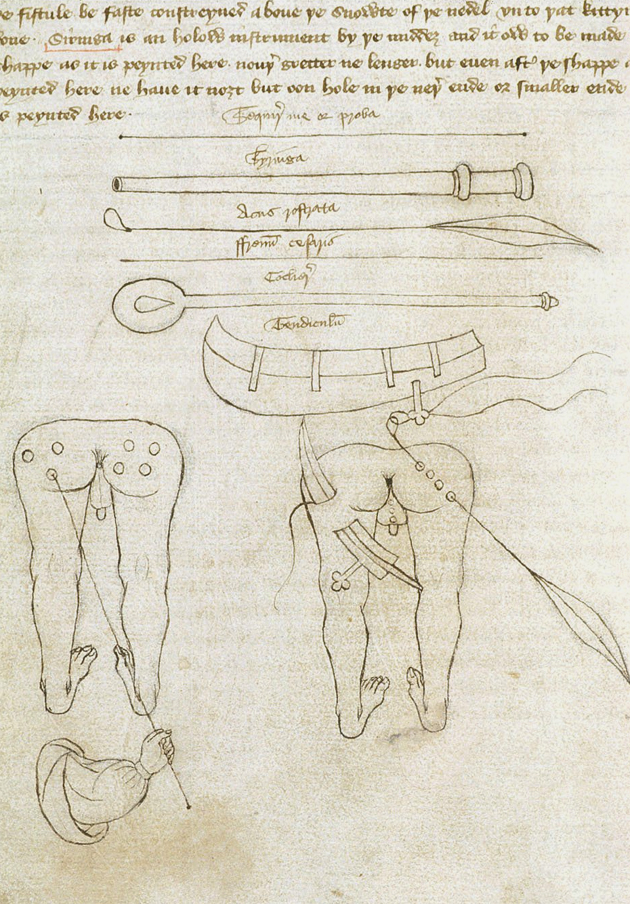 John Arderne's Medical treatise, Sloane 6 f.144, c.1430