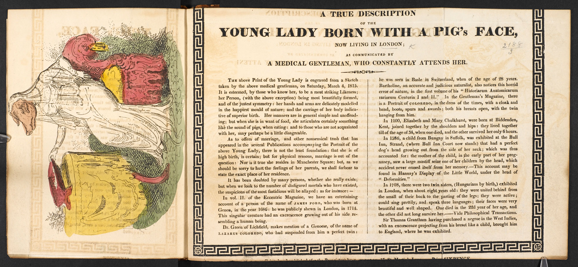 Broadside on the 'Young Lady Born with a Pig's Face'