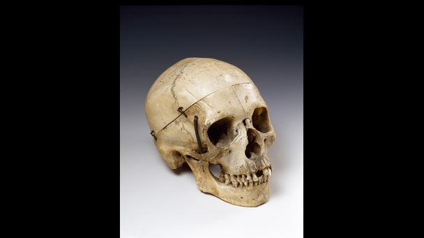 Skull given by Victor Hugo to Sarah Bernhardt