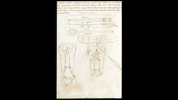 Page from a manuscript of John Arderne's medical treatise, containing text and illustrations of surgical instruments and a man's legs and bottom with wounds