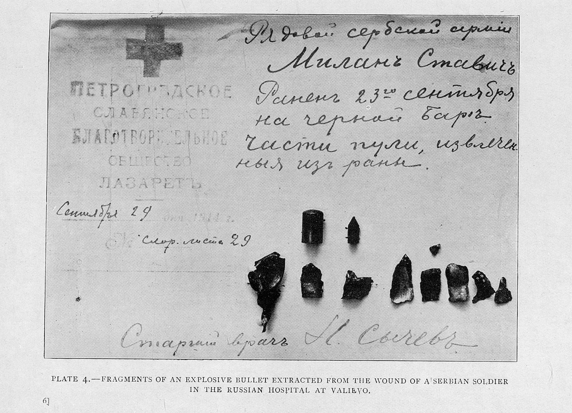 Fragments of an explosive bullet extracted from the wound of a soldier in 1914
